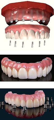 Treatment of Edentulism with Hybrid Dentures | Paternina Dental